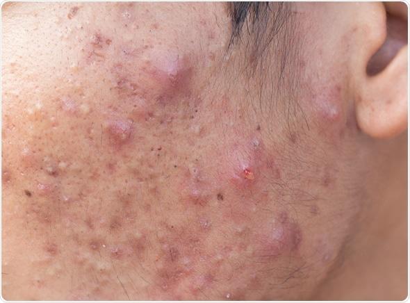 Você tem acne severa ou conhece quem tenha?